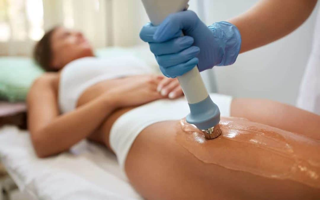 The cellulite procedure that actually works – Shockwave Therapy