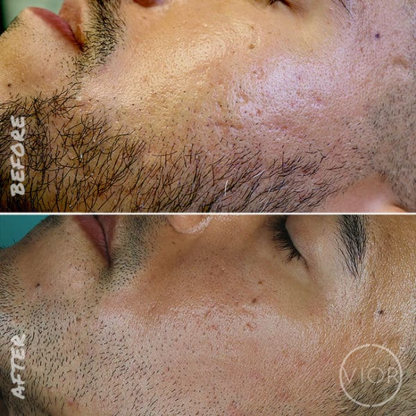 Acne Scar Laser Treatment Before and After