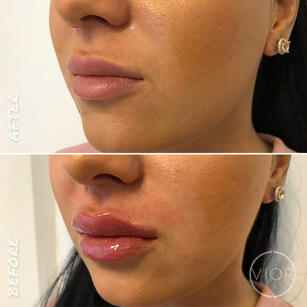 Dermal Fillers - Lips, Cheeks, and Under-Eye Augmentations