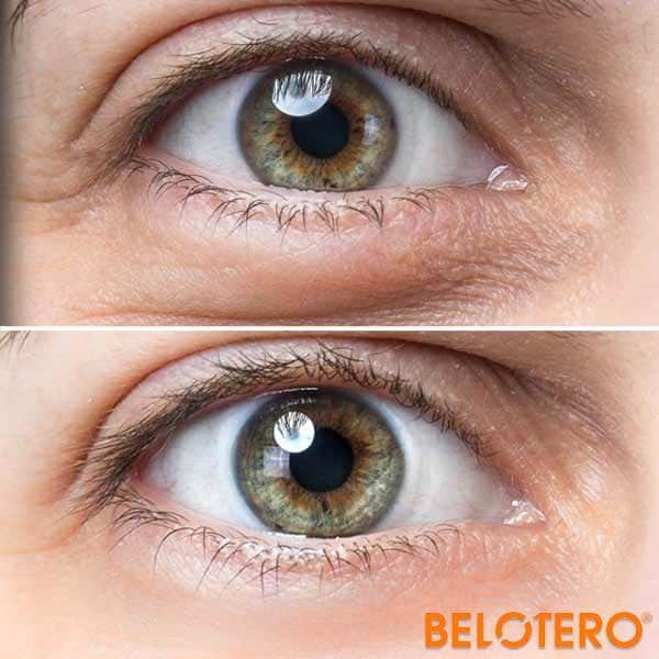 Belotero Balance Under Eye Filler Miami
